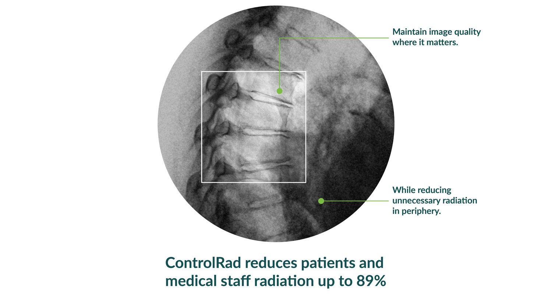 ControlRad Trace — безопасный рентген