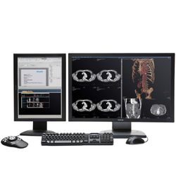 IntelliSpace Portal