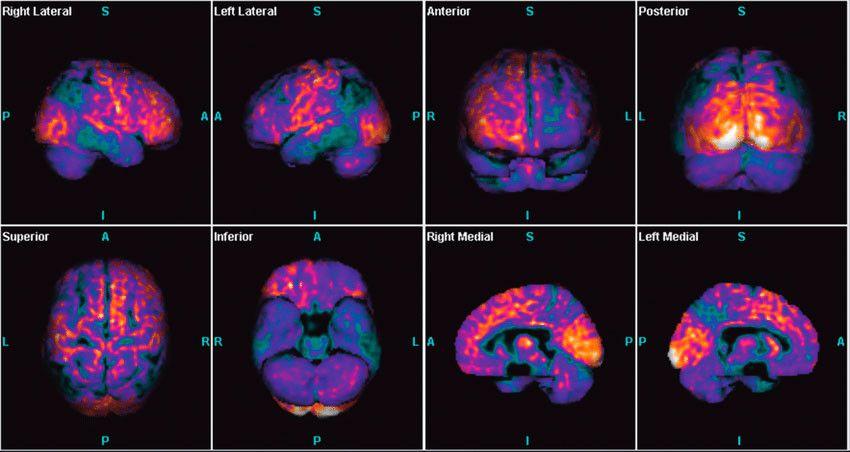 Новый метод визуализации ПЭТ может отслеживать и направлять терапию диабета типа 1